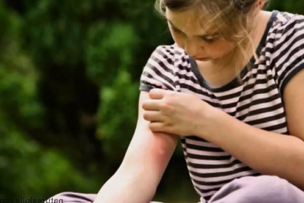 снять зуд от комариного укуса