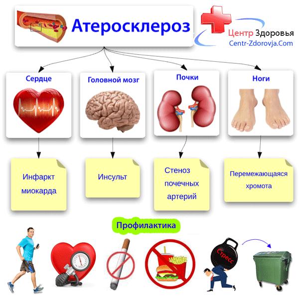 Атеросклероз и его профилактика