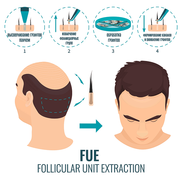 FUE-метод-пересадки-волос