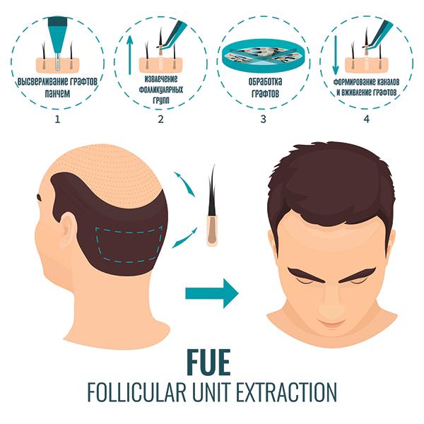 Что такое пересадка волос и как она делается?