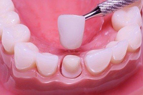 Виды коронок на зуб