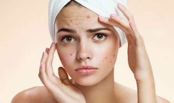 Лечение акне — эффективные методы лечения и профилактики угревой сыпи, рекомендации по уходу за проблемной кожей