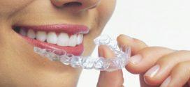 Услуги ортодонта — исправление неправильного прикуса