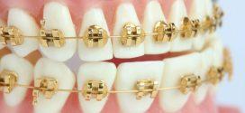 Какими бывают брекеты на зубы?
